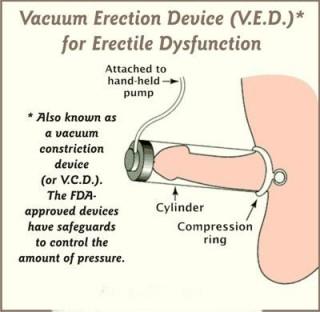 Penis Enhancement Pump Diagram