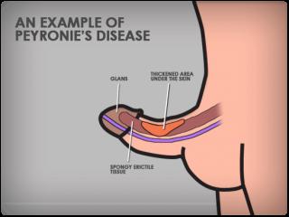 peyronies disease treatment